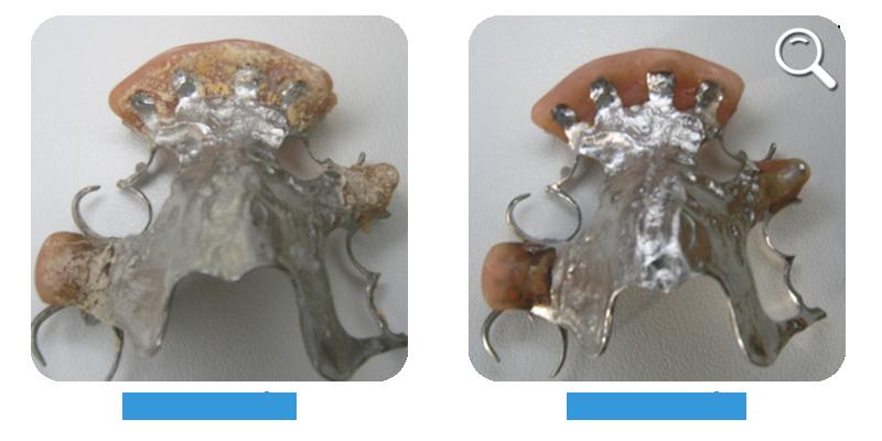 Avec-nettoyeur-prothese-dentaire-Stelis